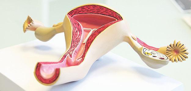Modell weibliches Genital mit Spirale